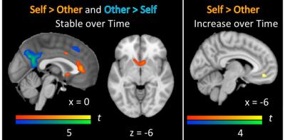 Brain reflecting social and self evaluation