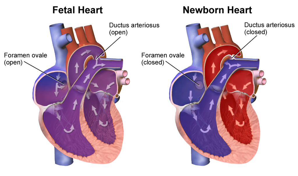 Fetal heart in utero and at birth